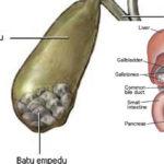 Mengetahui Bahaya Penyakit Batu Empedu, Berikut Penyebab, Gejala dan Komplikasinya