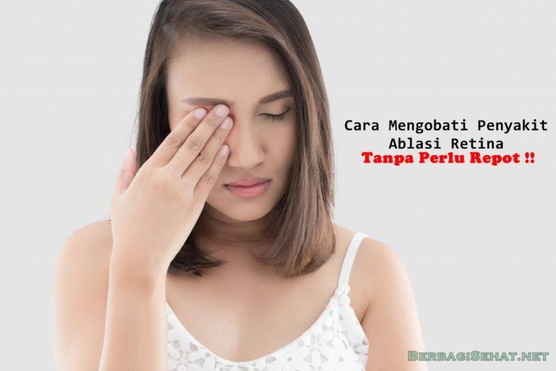 Cara Mengobati Penyakit Ablasi Retina Tanpa Perlu Repot