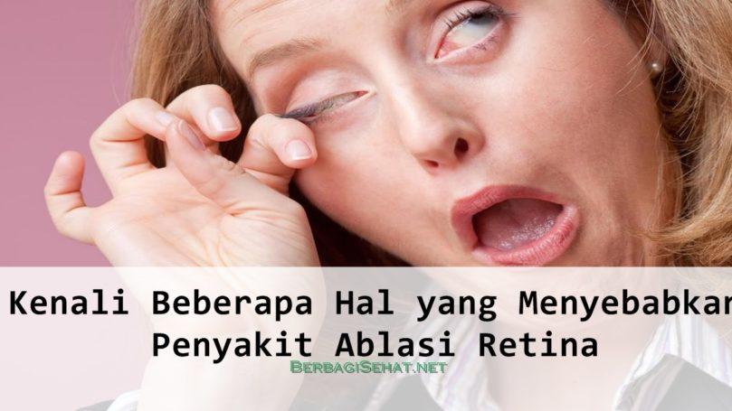Kenali Beberapa Hal yang Menyebabkan Ablasi Retina