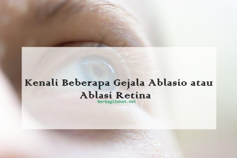 Kenali Beberapa Gejala Ablasio atau Ablasi Retina