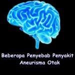 Beberapa Penyebab Penyakit Aneurisma Otak
