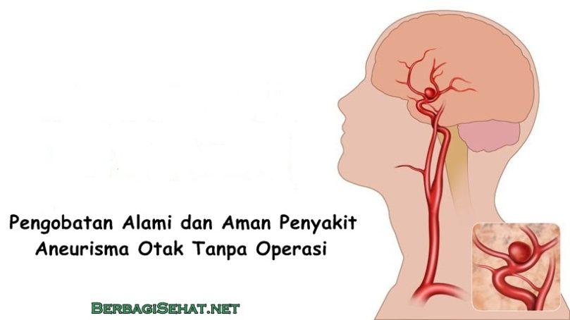 Pengobatan Alami dan Aman Penyakit Aneurisma Otak Tanpa Operasi
